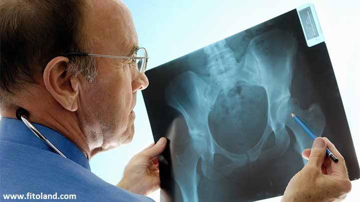 علائم پوکی استخوان و هر آنچه در مورد درمان پوکی استخوان باید بدانید