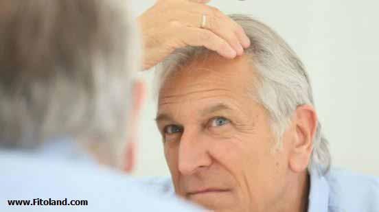 ارتباط هورمون تستوسترون با ریزش مو