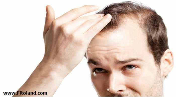 دلیل ریزش مو و طاسی مردانه با هورمون دیهیدروتستوسترون