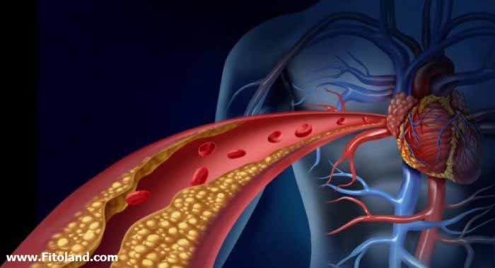 تشخیص سندرم متابولیک و مقاومت به انسولین