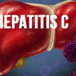 درمان طبیعی هپاتیت C