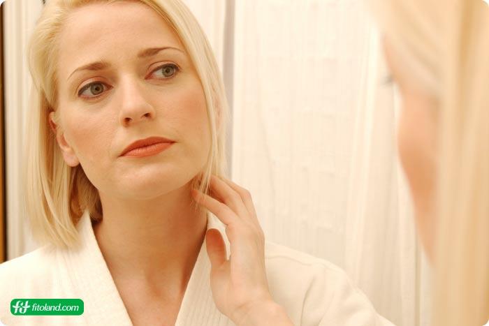 درمان طبیعی بیماری زونا