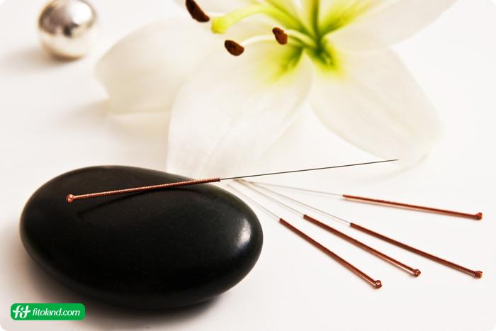 طب سوزنی یک درمان طبیعی سنگ کیسه صفرا و از راه های درمان سنگ صفرا