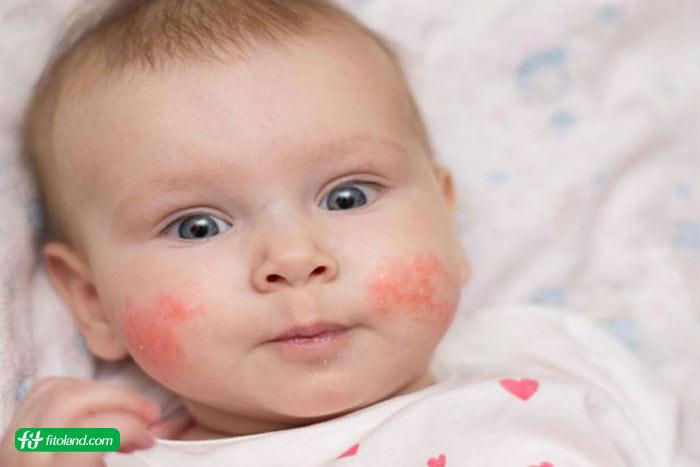 تاثیر پروبیوتیک در درمان اگزمای کودکان و انواع اگزما در کودکان