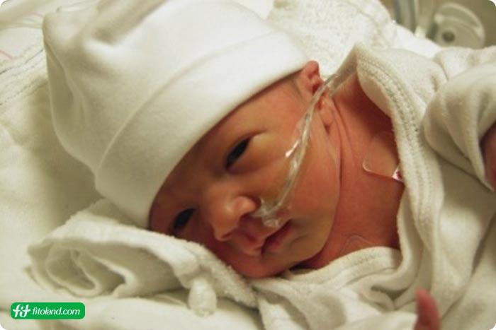 علائم سندرم تنگی نفس در نوزادان و تشخیص سندرم تنگی نفس برای سندرم تنگی نفس در نوزاد یا RDS