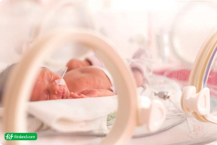 مشکلات مغزی نوزاد نارس