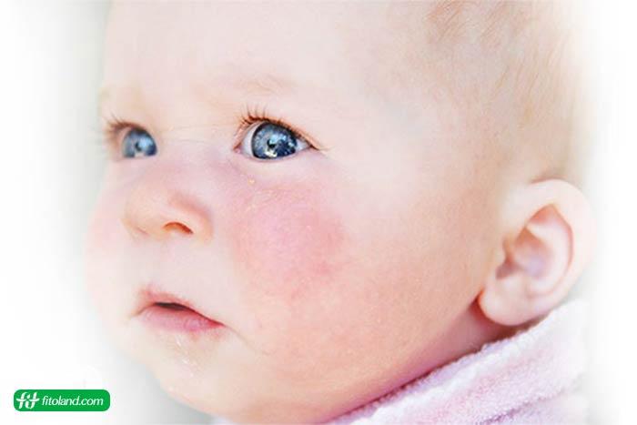 درمان طبیعی برای اگزما در کودکان